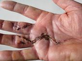 stock photo of scabs  - hand scar from duputren - JPG