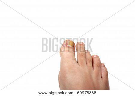 Removed Ingrowing Toe Nail