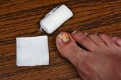 stock photo of scabs  - Ingrown toenail disease blood wound infection bacteria finger skin scab pus toe liquid whitlow felon treatment swelling on a brown table background - JPG