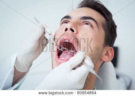 Close up of man having his teeth examined by dentist