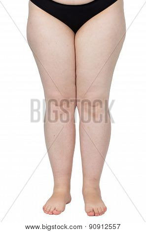 legs obese. Weight problems. trouble walking. p?askosotopie, valgus knee