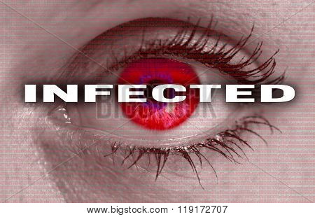 Infected Eye Looks At Viewer Concept Macro