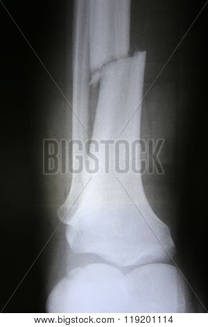 X-ray photos of bone in patient
