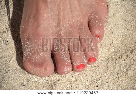 Two toes missing nails