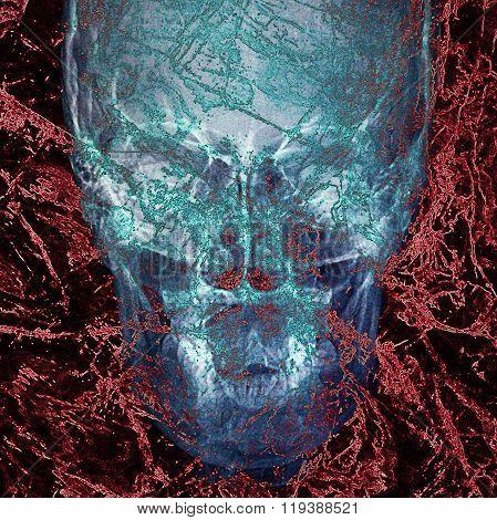 Pathogen Abstract Background