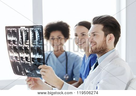radiology, surgery, health care, people and medicine concept - group of happy doctors looking to and discussing x-ray image of spine at hospital