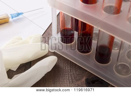 Tubes Of Blood As The Blood Test