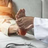 Plantar Fasciitis Or Heel Pain Illness In Feet Of Woman Patient Who Having Medical Exam With Orthopa poster