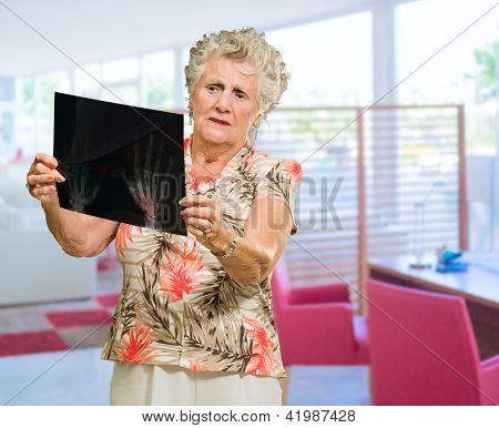 Senior Woman Holding X Ray Report, Indoors