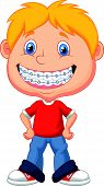 stock photo of crooked teeth  - Vector illustration of Little boy cartoon with brackets - JPG