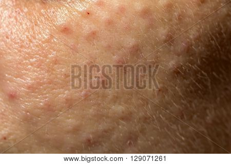Female face closeup with many pimples on problematic unhealthy skin