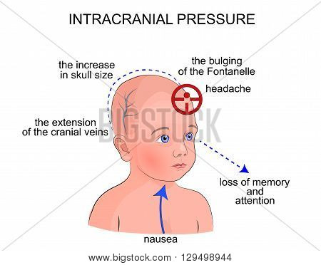 illustration of symptoms of intracranial pressure in children