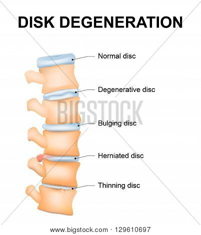 Disc degeneration it's the normal wear and tear process of aging spine. intervertebral discs lose their flexibility elasticity and shock-absorbing characteristics.