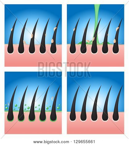 hair conditioner demonstration vector 4 versions on blue background