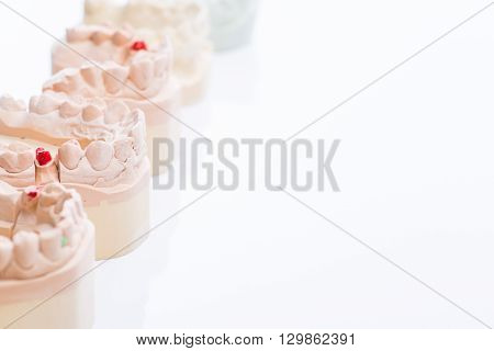 Teeth Molds On A Bright White Table