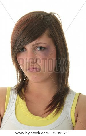 Abused victim isolated on white background