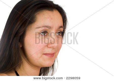 Upset Woman With Acne