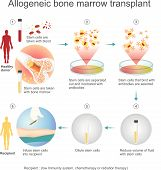 The Allogeneic Transplant Process Are Donated To The Person From Another Person, A Genetically Match poster
