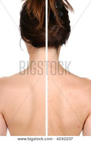 Concepto de cuidado de piel