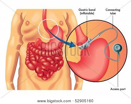 Adjustable Gastric Banding.eps