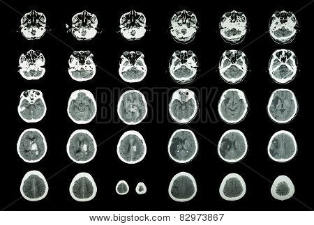 Hemorrhagic Stroke And Ischemic Stroke