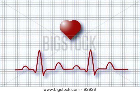 EKG EKG
