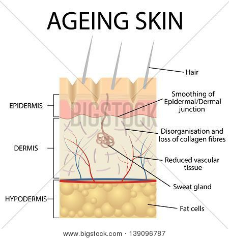 Old skin anatomy characterized by presence of age spots and wrinkles caused by loss of collagen fibers atrophy of epidermis and blood vessels.