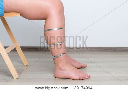 Woman diabetes leg. Injured diabetes leg. Medical