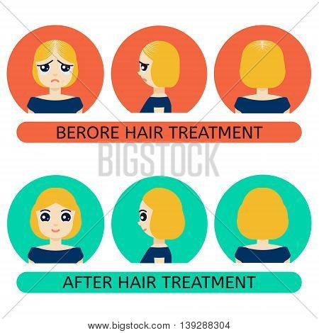 Front side back view of a woman with hair loss problem before and after hair treatment and hair transplantation. Female hair loss set in cartoon style. Perfect for hair clinics. Vector illustration.