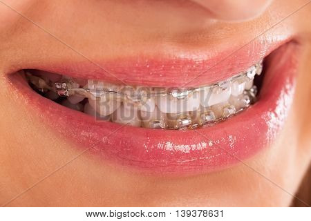 Detail Of Young Womans Smile Showing White Teeth With Braces