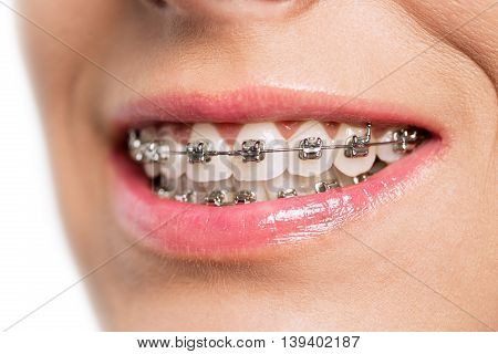 Teeth with braces isolated on white, close up
