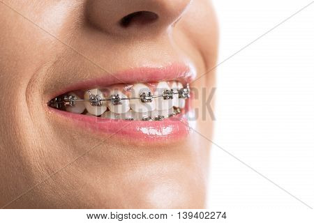 Close Up Of Braces Girls Teeth