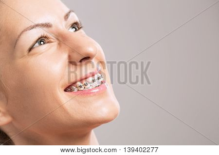 Young girl with braces on teeth, close up