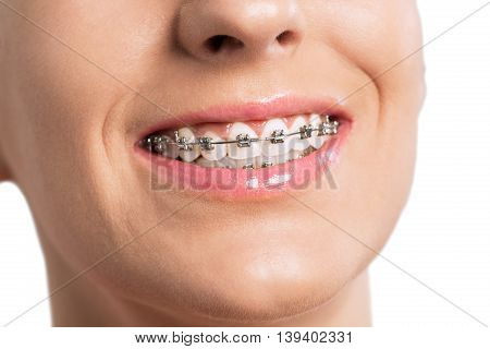 Smiling Female Mouth With Braces On Her Teeth