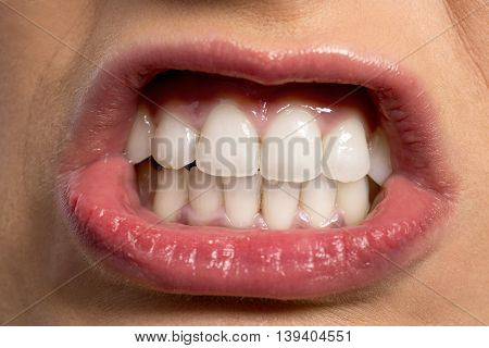 Funny Mouth With Beautiful White Teeth