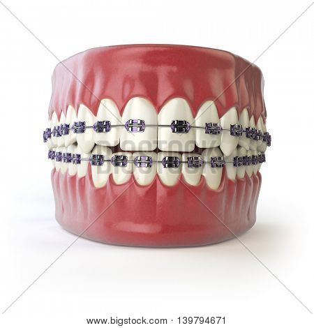 Teeth with braces or brackets isolated on white. Dental care concept. 3d illustration