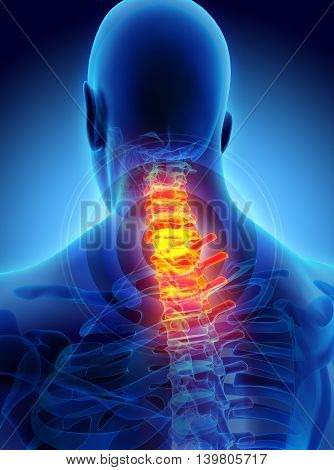 Neck Painful - Cervica Spine Skeleton X-ray, 3D Illustration.