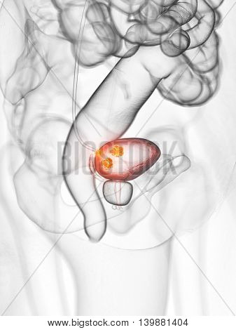 3d rendered medically accurate illustration of bladder cancer