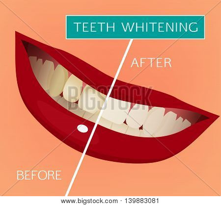 Healthy woman smile vector illustration on a pink background. Medical and healthcare concept. Normal occlusion dental image. Teeth whitening visual scheme