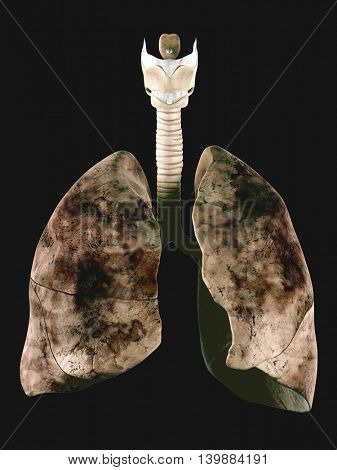 medically accurate illustration of the human lung