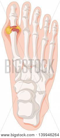 Gout toe in human foot illustration