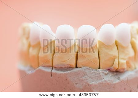Zircon Teeth