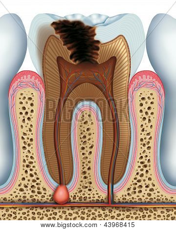 Tooth caries