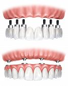 stock photo of cleanliness  - Explanatory image placement of a dental prosthesis - JPG