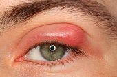 image of pus  - illness person eye with sty and pus looking into the camera - JPG