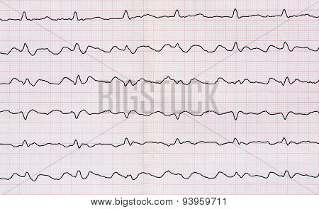 Ecg With Paroxysm Correct Form Of Atrial Flutter With Atrioventricular Conduction 2:1