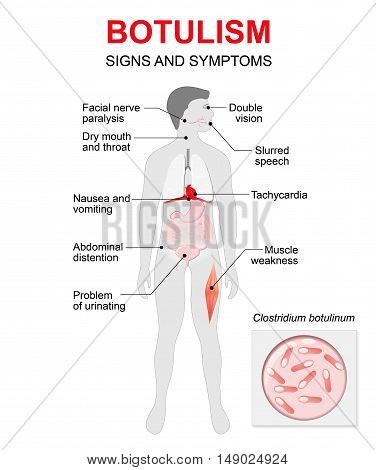 Botulism is a fatal illness caused by a toxin produced by the bacterium. Signs and symptoms. Human silhouette with highlighted internal organs.