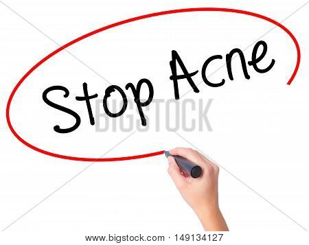 Women Hand Writing Stop Acne  With Black Marker On Visual Screen.