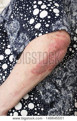 Psoriasis, Psoriatic Skin Disease