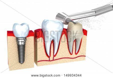 Dental crown implant and teeth 3d image .